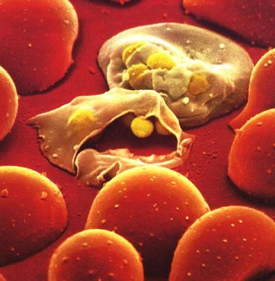 The Bacteria Responsible for the Disease, P.falciparium, Normally Infects the Red Blood Cells